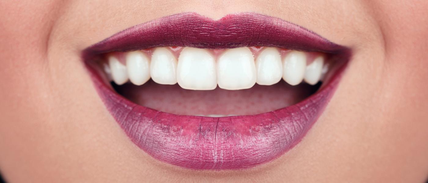 Tandläkare i Malmö ger dig ett fint leende